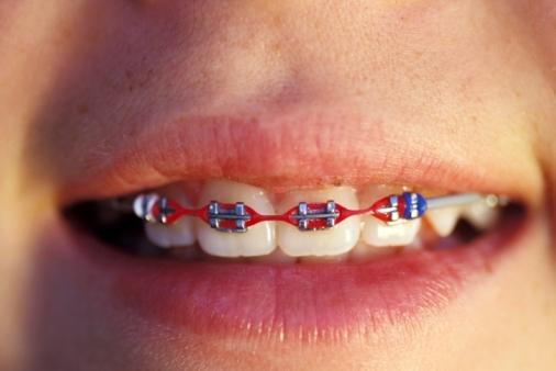 ortodonzia classica